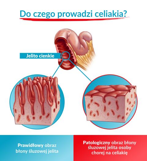 celiakia u dzieci, objawy celiakii u dzieci, celiakia u dziecka