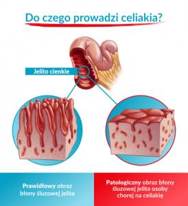 nieleczona celiakia, nieleczona celiakia powikłania, celiakia powikłania, powikłania celiakii